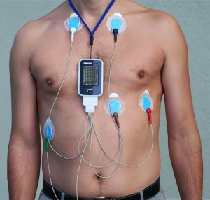 ECHO and Holter Monitor